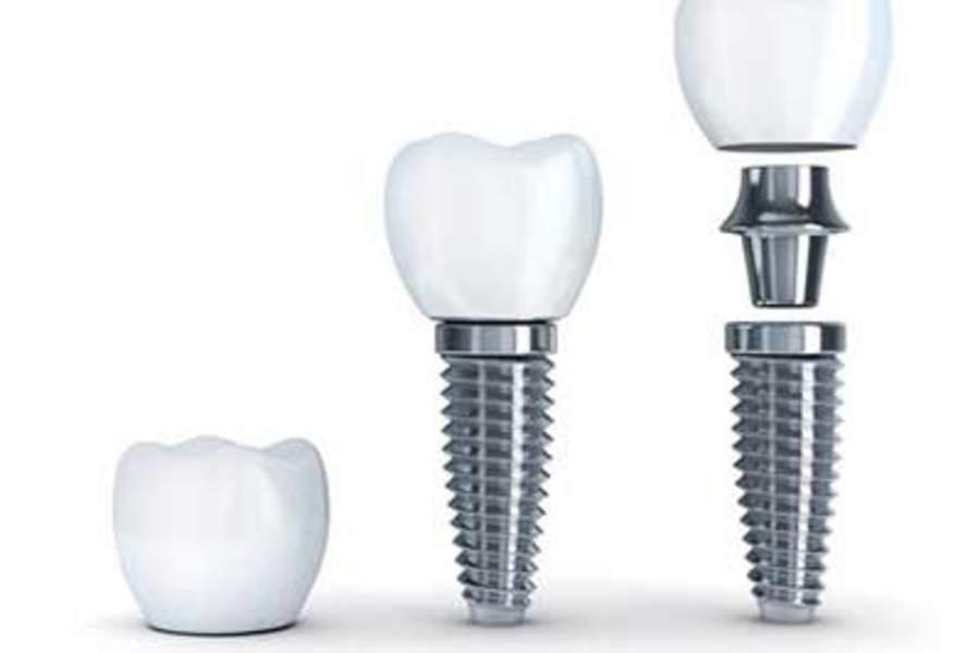 Künstliche Zahnfüllung
